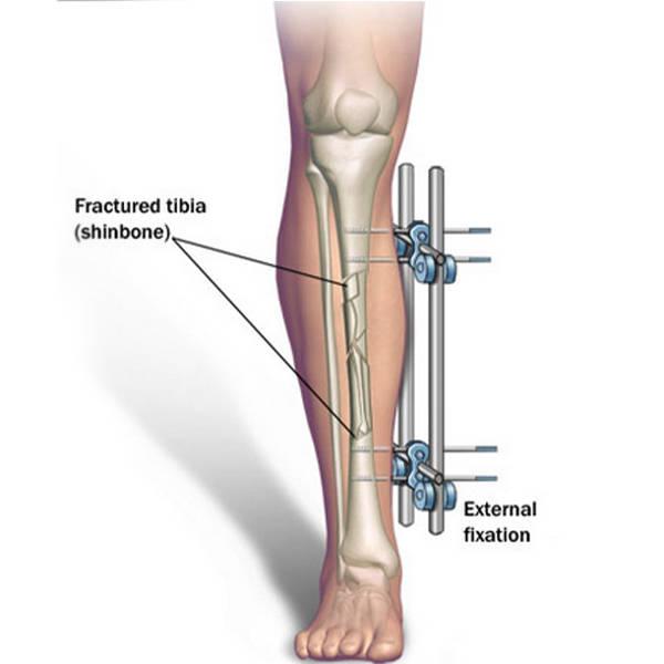 limb-lengthing