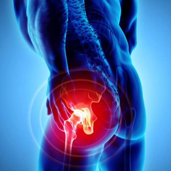 hip surgery